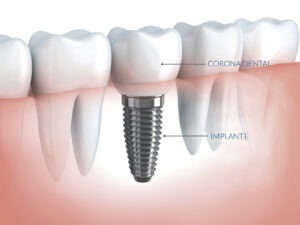 implantes dentales grup policlinic