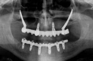 implantes dentales zigomaticos